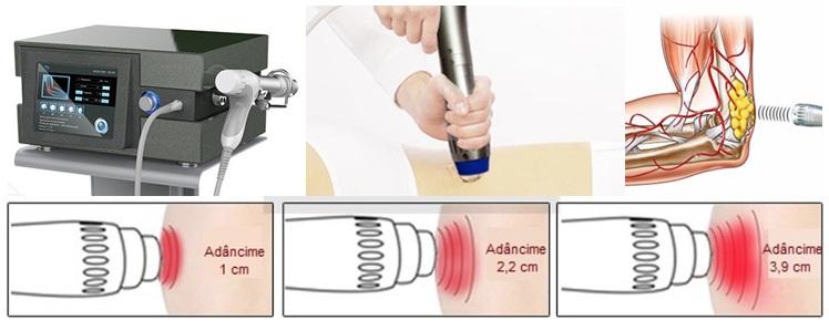 terapia cu undă de șoc și varicoză