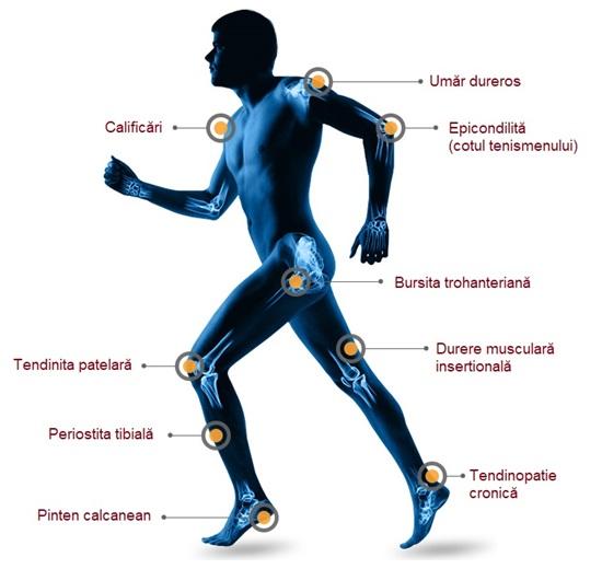terapia cu valuri de șoc pentru durerile articulare)